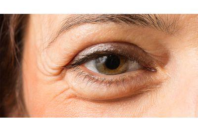 A táskás szem három típusa, és az ázsiai kezelési módjaik